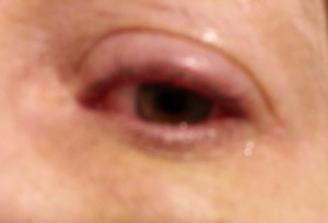 Came home with an eye infection after my medical procedure