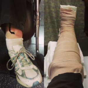 Broken Ankle (Bimalleolar Fracture) - From Break to Splint